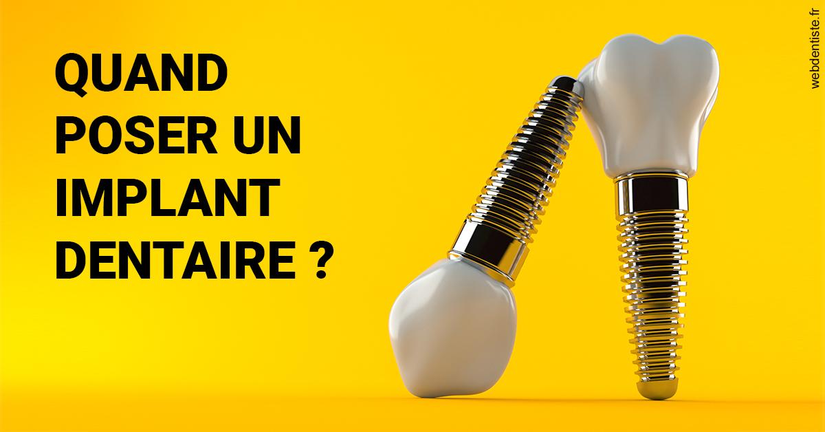https://dr-renoux-alain.chirurgiens-dentistes.fr/Les implants 2