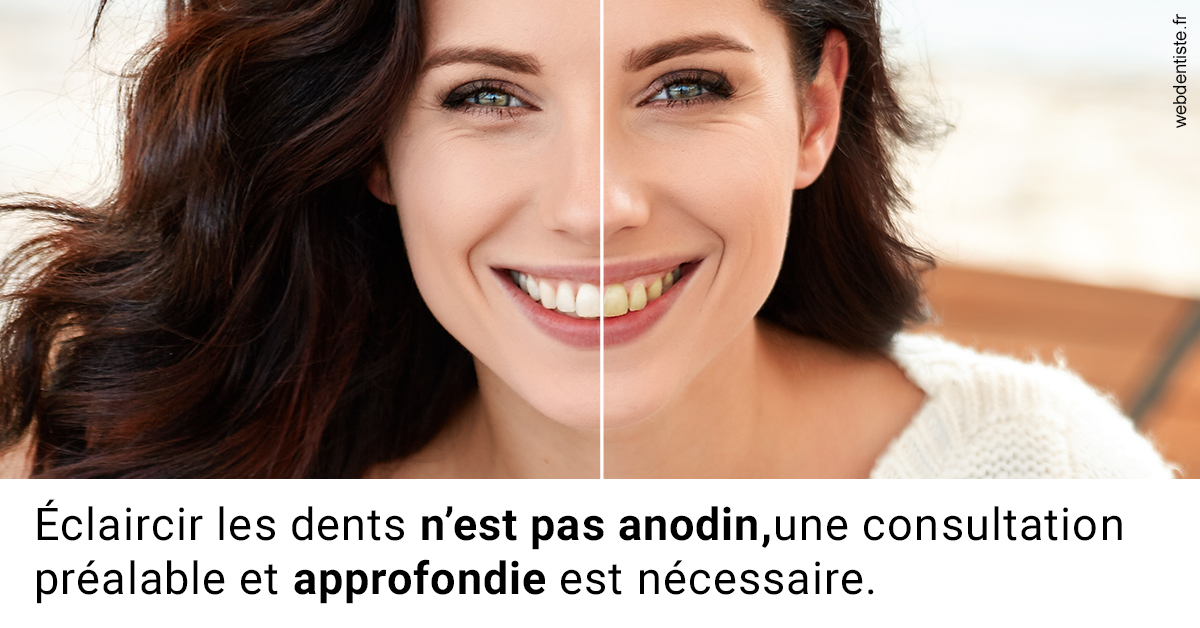 https://dr-renoux-alain.chirurgiens-dentistes.fr/Le blanchiment 2